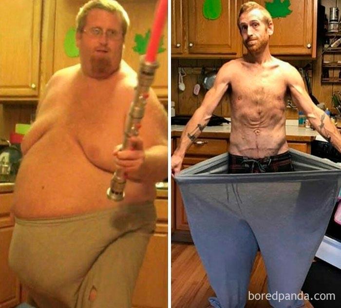Почему человек сильно похудел