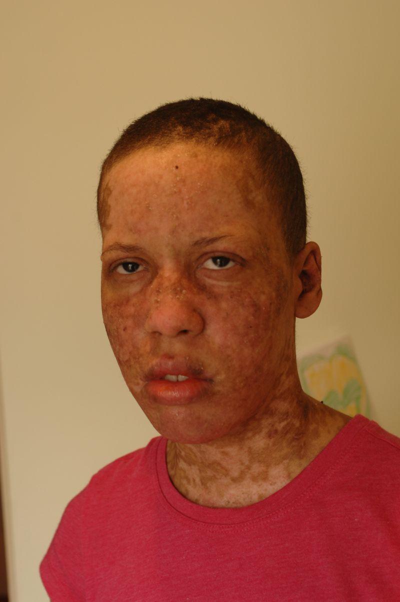 токсический дерматит: синдром Лайелла