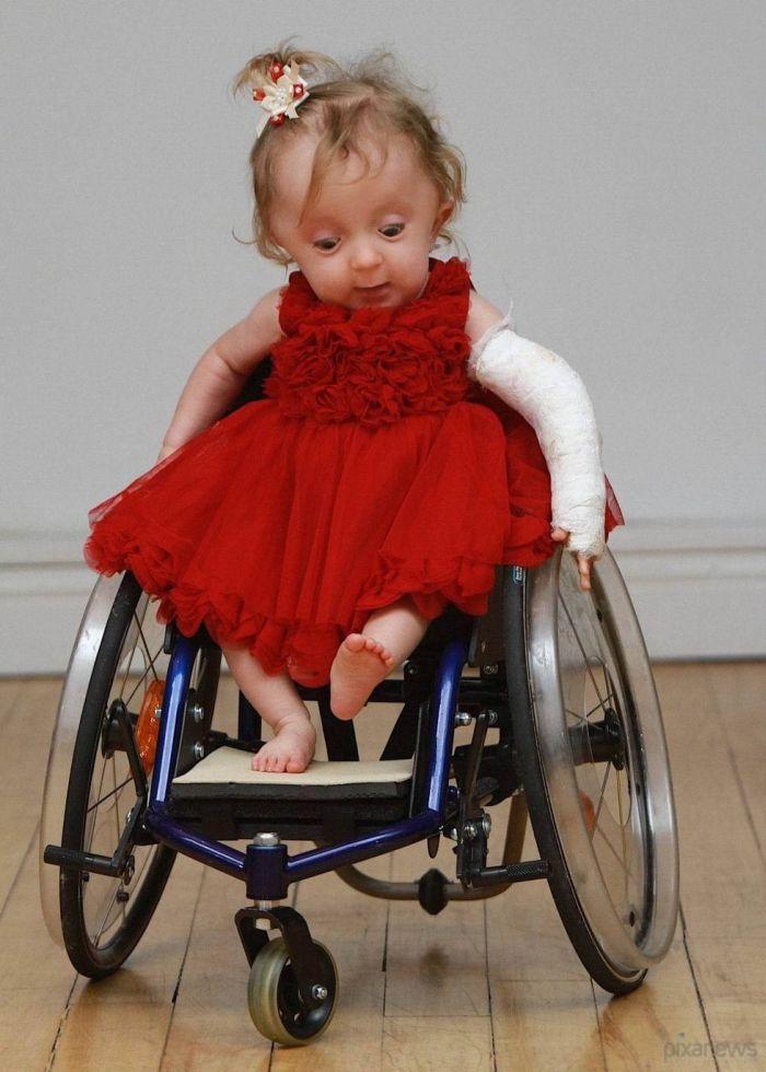 Девочка без ног картинки