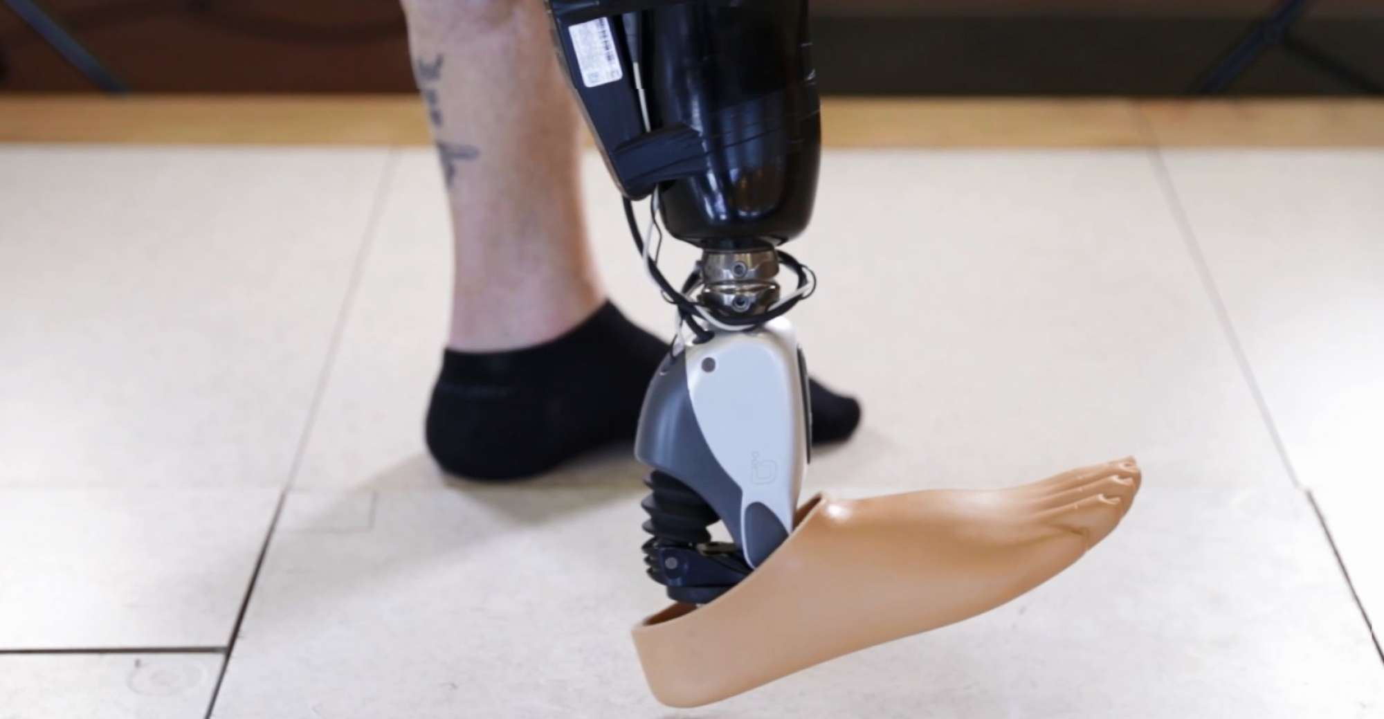 myo electric prosthetic limb A myoelectric prosthetic arm with a average cost of a myoelectric prosthetic arm depended partly on the level of limb loss a myoelectric prosthetic for.